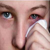 Tại sao đau mắt đỏ lây qua đường hô hấp?