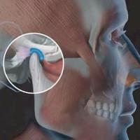 Biểu hiện và cách điều trị loạn năng thái dương hàm