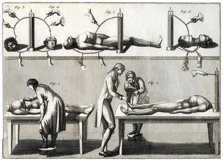 Giovanni Aldini làm nhiều thí nghiệm trên người chết.