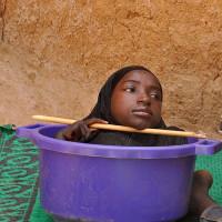 Thiếu nữ sống trong chậu nhựa vì căn bệnh lạ