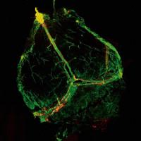 Phát hiện mạch bạch huyết chưa từng thấy trong não người