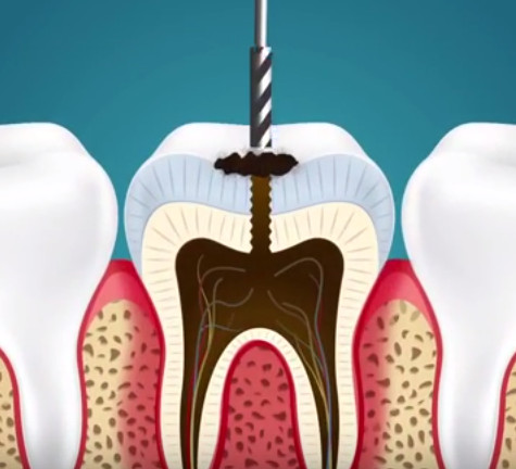 Mô phỏng quá trình chữa sâu răng.