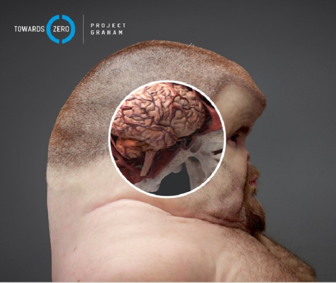 Hộp sọ của Graham lớn hơn nhiều so với hộp sọ của người bình thường.