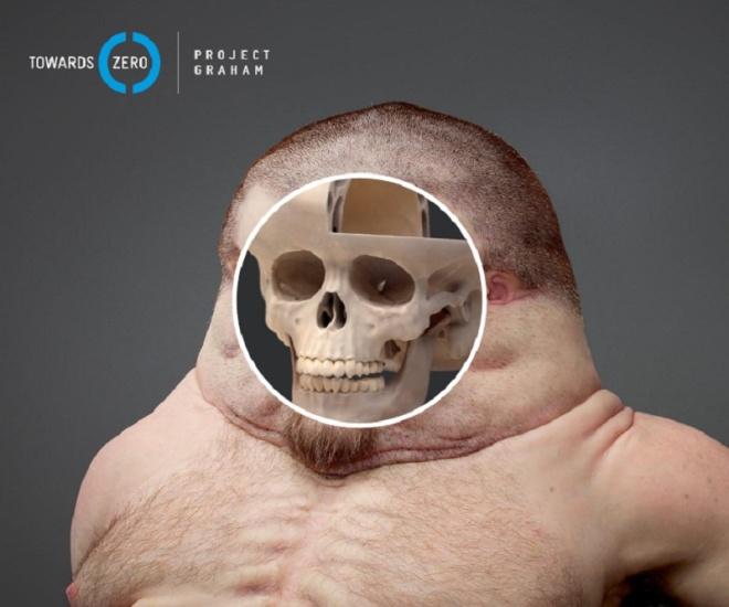 Mặt người là sự kết hợp tinh tế của xương, cơ và sụn.