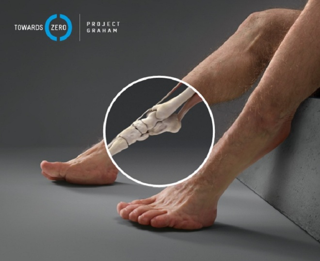 Đối với người đi bộ, có rất nhiều yếu tố ảnh hưởng tới độ nghiêm trọng của chấn thương như: kích thước xe, chiều cao, tốc độ và góc đâm.