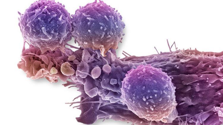 Tế bào miễn dịch trong máu người bệnh sẽ được chèn mã di truyền mới giúp tăng cường khả năng tiêu diệt tế bào ung thư.