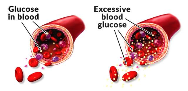 Máu bão hòa đường gây thiệt hại cho các cơ quan trong cơ thể và các động mạch