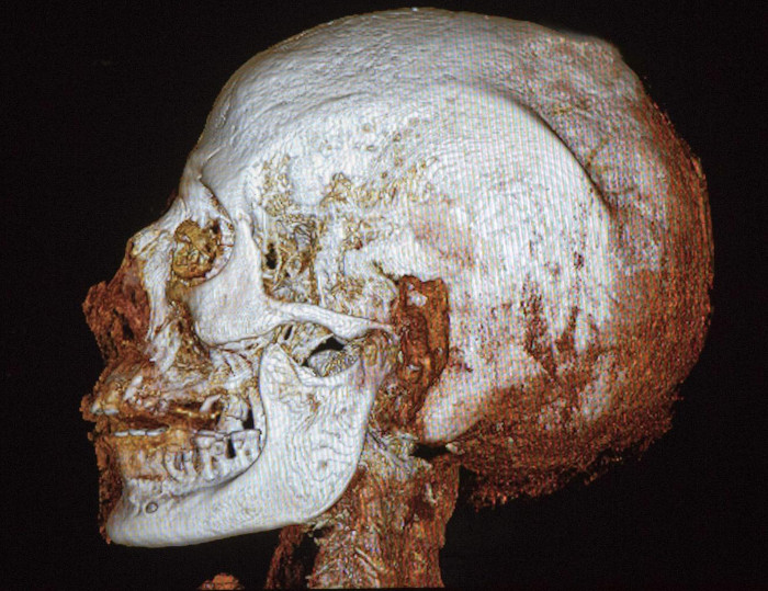 Chụp CT cho thấy người này mắc nhiều chứng bệnh như loãng xương, sâu răng và sụt lợi.