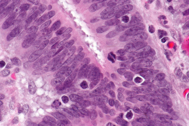 Chế độ ăn của Longo giúp tế bào TIL tích lũy bên trong khối u ung thư.
