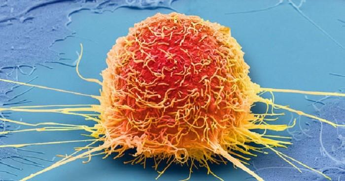 Làm thế nào để chỉ bỏ đói khối u mà không bỏ đói người bệnh?
