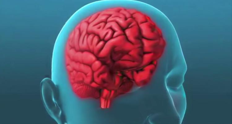 Theo các nhà khoa học ở IHGC thì nguyên nhân gây ra chứng đau nửa đầu là do sự lưu thông máu lên não bộ.