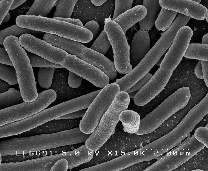 """Khuẩn E.Coli biến đổi còn sở hữu một mạch di truyền cho phép nó xác định được """"dân số"""" của các loại vi khuẩn khác ở xung quanh."""