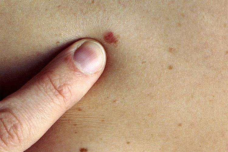 Dấu hiệu thường gặp của BCC là xuất hiện các khối u nhỏ màu đỏ, hồng hoặc ngọc trai.