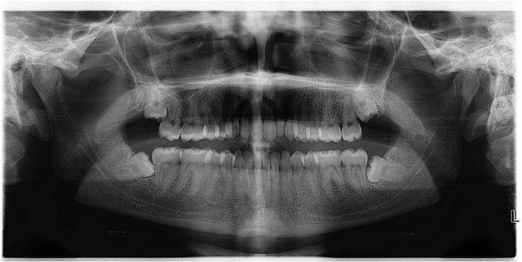 """Chúng ta hoàn toàn có cơ sở để mà """"đổ lỗi"""" cho tổ tiên vì sự tồn tại của những chiếc răng khôn thích mọc lệch."""