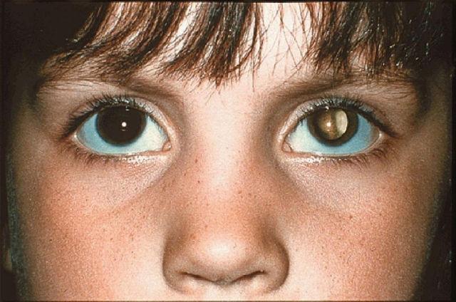 Dấu hiệu của bệnh nguyên bào võng mạc.