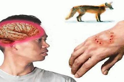 Virus dại chủ yếu lây nhiễm qua vết cắn, hoặc vết thương hở do nước bọt của chó dính vào.