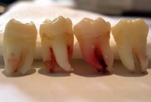 """""""Răng khôn"""" trở thành nguy hiểm vì viêm răng khôn có thể gây tử vong do nhiễm trùng máu."""
