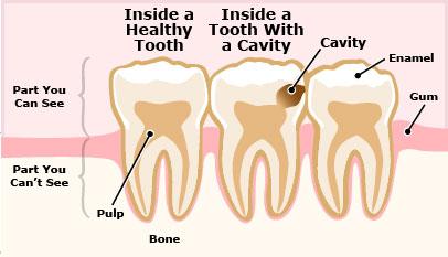 Cách duy nhất để sửa chữa những thiệt hại này chính là đi trám răng.