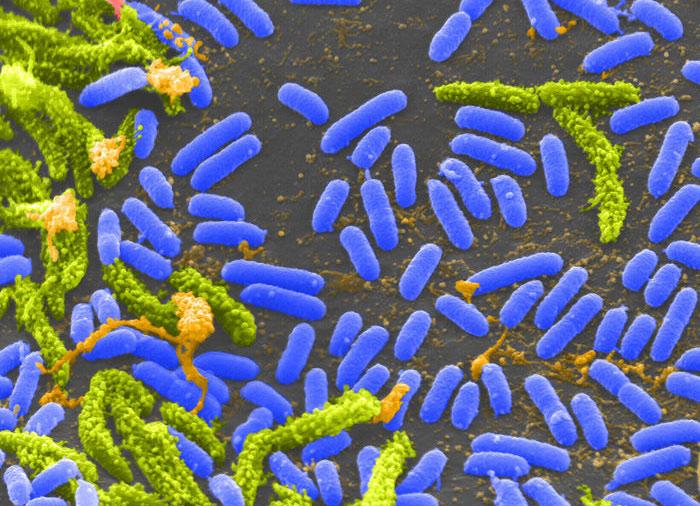 Biến đổi khí hậu giúp bệnh tả phát triển nhanh hơn.