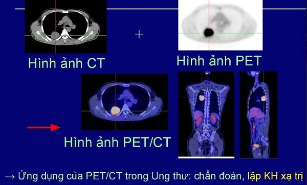 Ứng dụng của PET/CT trong điều trị ung thư