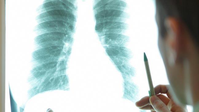 Bệnh nhân ung thư sống sót sau 5 năm phát hiện bệnh thì có thể coi là khỏi bệnh hoàn toàn.