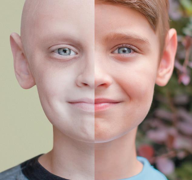 Nam giới không cảnh giác với những triệu chứng của ung thư
