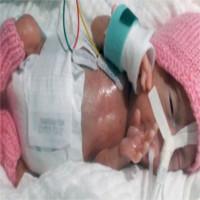 Em bé sinh non nhẹ nhất thế giới