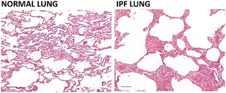 Hình ảnh cắt ngang nhuộm màu của phổi bình thường và bị xơ phổi vô căn dưới kính hiển vi.