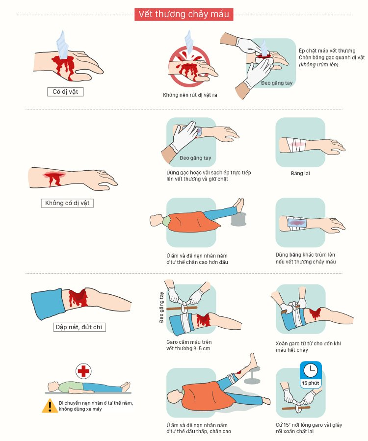 Đối với vết thương hở không có dị vật, bạn dùng gạc hoặc vải sạch ép trực tiếp lên vết thương và giữ chặt.