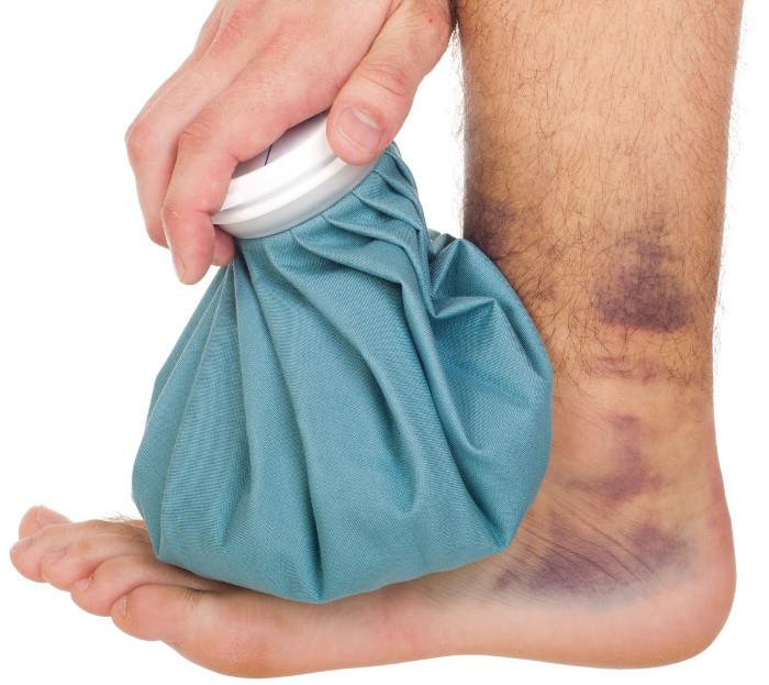 Chườm đá đúng cách giúp bớt sưng, làm giảm tình trạng xuất huyết dưới da.