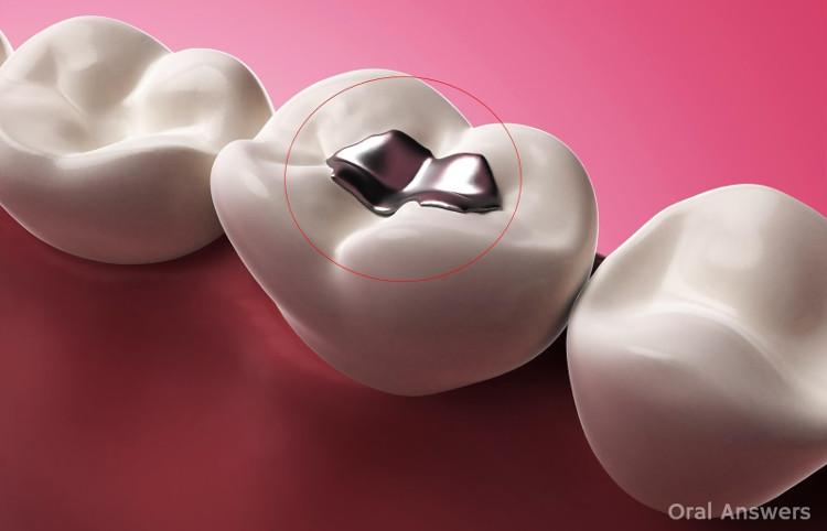 Vật liệu trám răng làm từ amalgam - có tới 50% từ thủy ngân.
