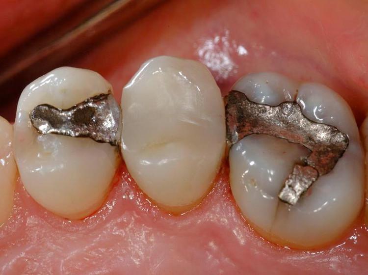 Hàn răng truyền thống bằng kim loại quá nhiều lần sẽ khiến mức thủy ngân trong máu tăng lên đáng kể.
