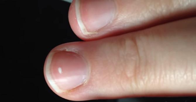 Tại sao móng tay có đốm trắng, lí do thật đơn giản