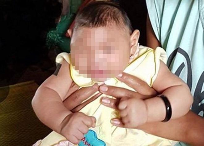 Em bé bị dị tật bẩm sinh tại Đăk Lăk.