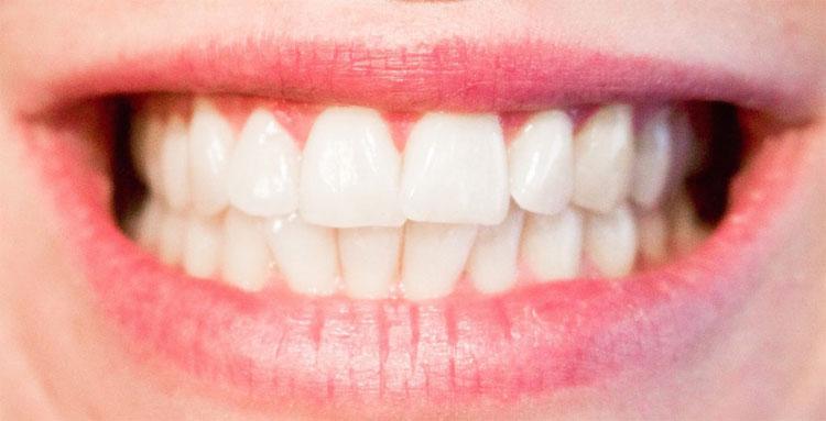 Đau răng cũng là một trong những nguyên nhân gây chết người một cách bất ngờ nhất.