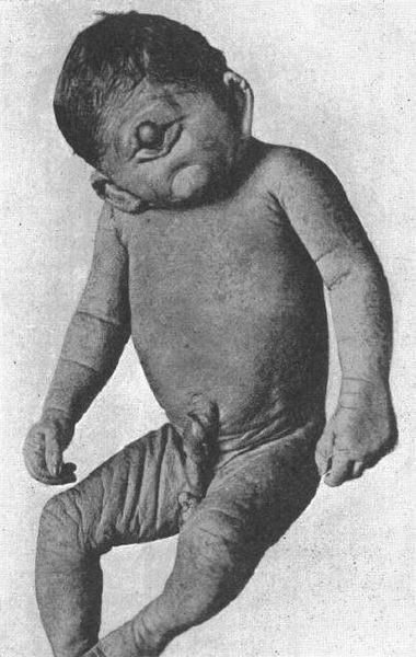Trẻ mắc bệnh cyclopia.