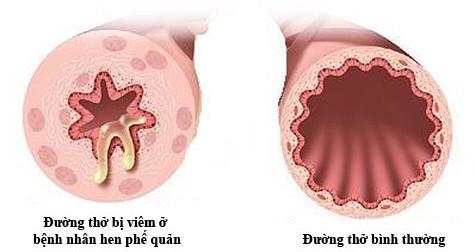 Hen phế quản là bệnh viêm mạn tính đường hô hấp.