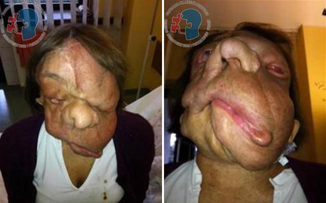 Khối u chèn lên mặt khiến Joanna không thể cử động được miệng.