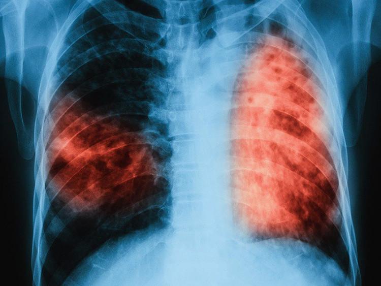 Bệnh lao vẫn đang lây nhiễm cho gần 2 tỉ người trên thế giới.