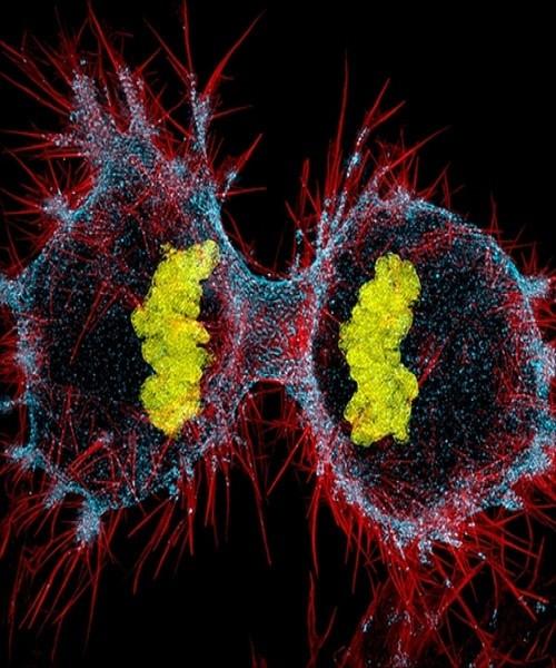 Tế bào ung thư đang ở giai đoạn cuối của quá trình phân chia tế bào.