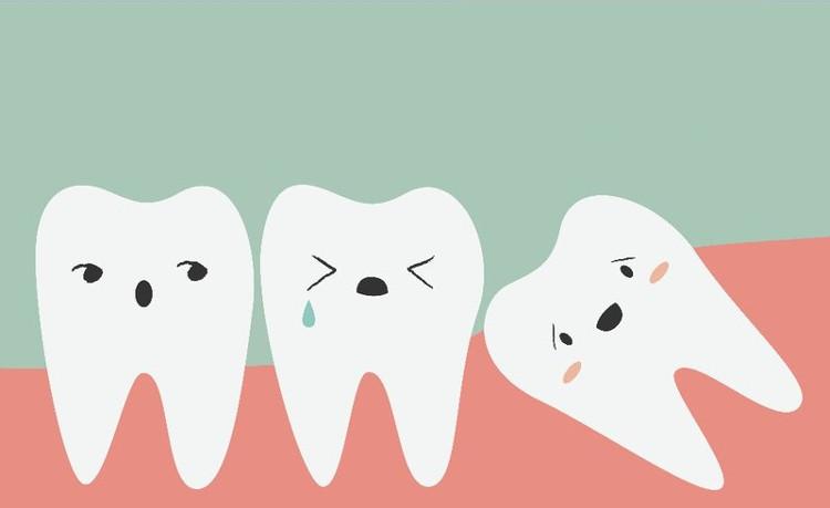 Nếu răng khôn chung sống bình yên với những chiếc răng khác thì bạn không cần phải nhổ nó làm gì.