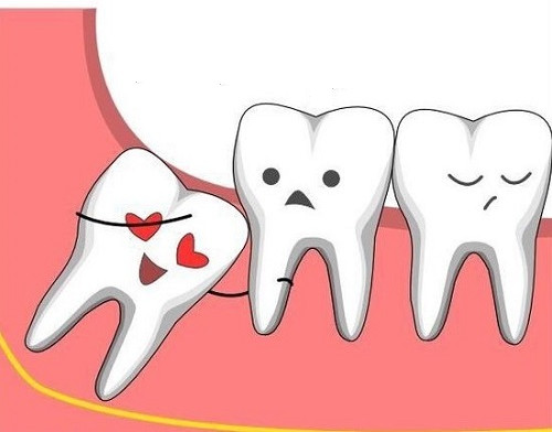Không phải tất cả những chiếc răng khôn nào cũng cần phải loại bỏ.