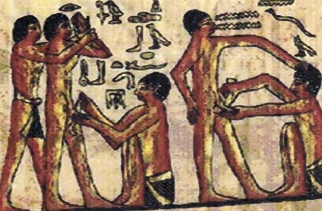 Người Ai Cập cổ đại thực hiện tập tục cắt bao quy đầu từ những khoảng 4000 năm TCN.