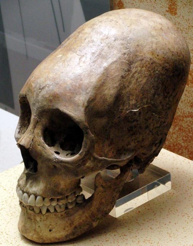 """Người Inca """"buộc"""" đầu của bé với một thứ vật dụng cứng để bóp méo hộp sọ với hình dáng mong muốn."""