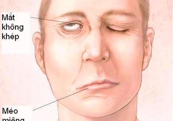 Chủ quan với bệnh viêm dây thần kinh số 7 sẽ khiến bạn bị liệt mặt vĩnh viễn.