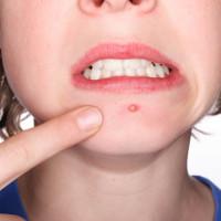 Vì sao vi khuẩn chỉ gây mụn ở một số người?