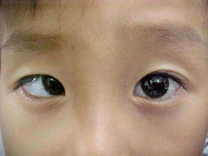 Chứng mắt lác là một trong những nguyên nhân chính gây ra nhược thị.