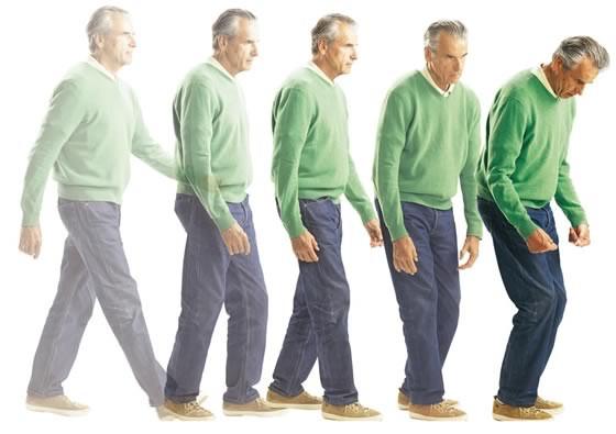 Bệnh Parkinson thường gặp ở người lớn tuổi, chỉ 10% trường hợp khởi phát tuổi dưới 40.