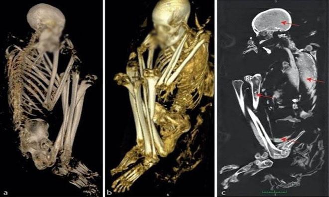 """Năm 2008, một đội tuần tra phát hiện """"xác ướp Tuli"""" tại ngôi mộ nằm dưới chân vách đá ở Botswana, châu Phi."""