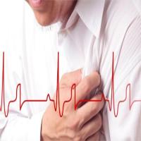 """""""Thời gian vàng"""" cấp cứu người nhồi máu cơ tim"""